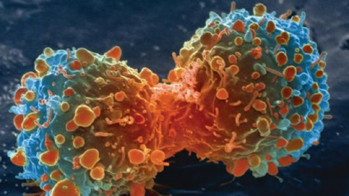 combining-cannabinoids-with-radiotherapy-improves-cancer-outcomes-300376